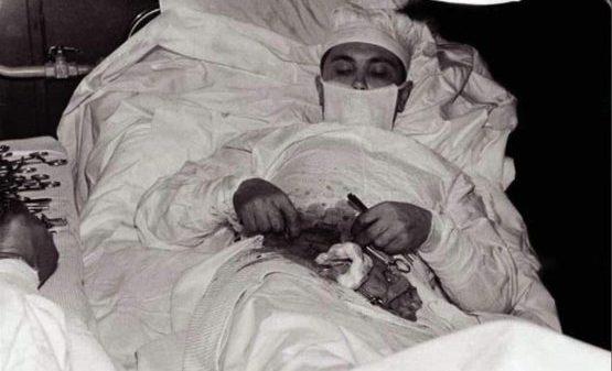 O'zini o'zi operatsiya qilgan odam